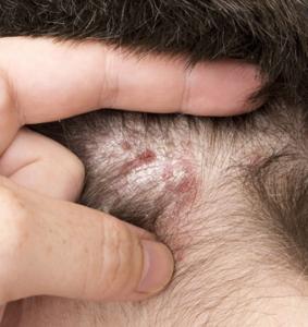poux experts guérit les affections du cuir chevelu